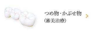 つめ物・かぶせ物(審美歯科)