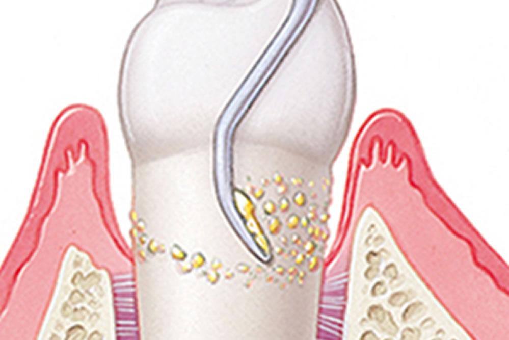 歯周病外科治療