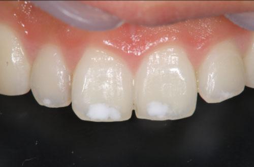 歯の表面に白い斑点?